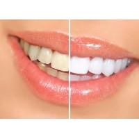 Все тонкости отбеливания зубов