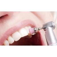 Шлифование и полирование поверхности зубов