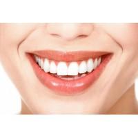 Чистка зубов методом «Air Flow»